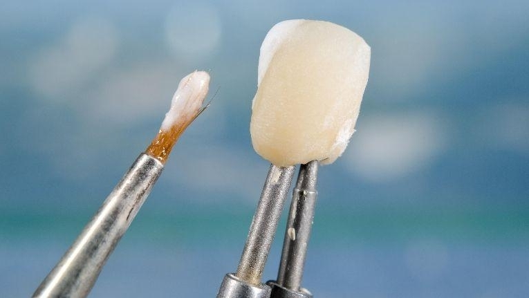REASONS YOU MIGHT NEED A DENTAL CROWN
